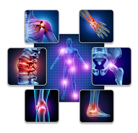 Inflammation Joint Pain Illustration